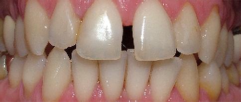 Casi_1_ | Studio dentistico a Bellusco e Gaggiano