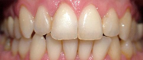 Casi_2_ | Studio dentistico a Bellusco e Gaggiano