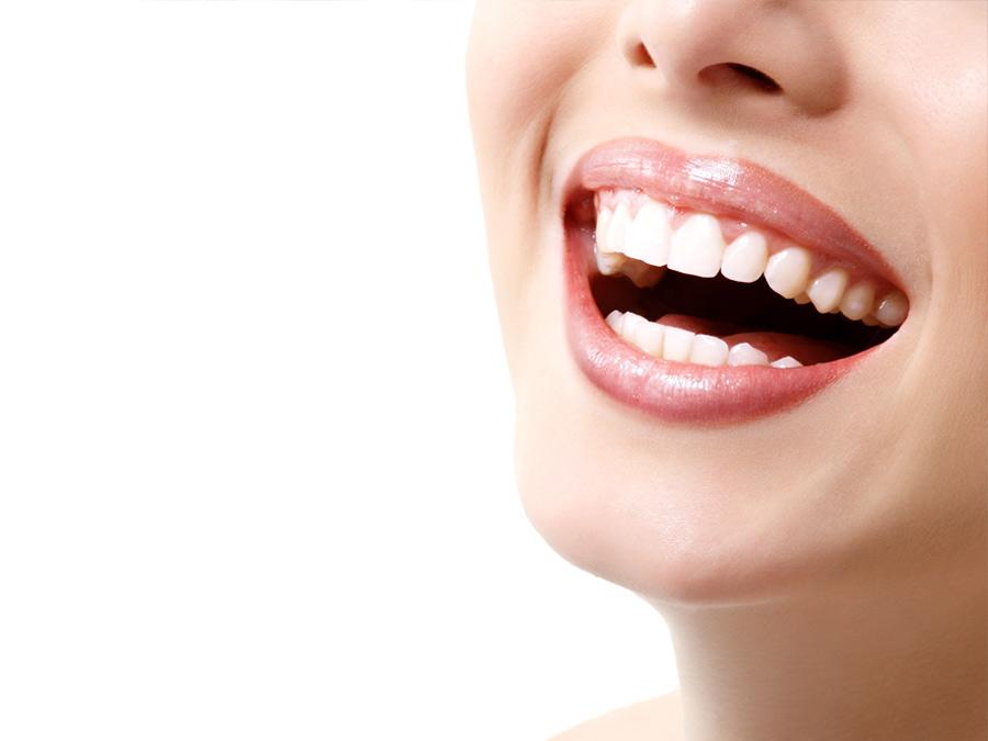Eccellenze_Estetica_ | Studio dentistico a Bellusco e Gaggiano